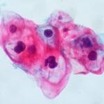 Fiorina's Fuzzy Vaccine Claims